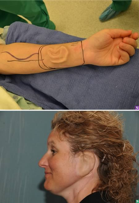 The woman who grew an ear on her arm