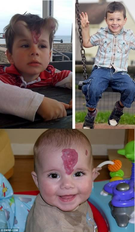 The little boy who was given 'devil's horns' implants to remove birth mark