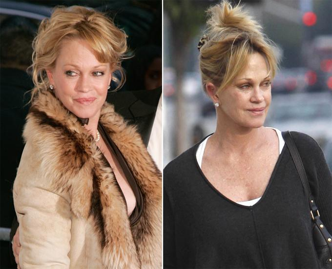 Melanie Griffith is Mocked for her Appearence