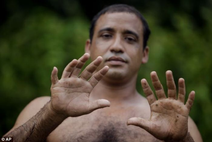 A Man With 24 Fingers