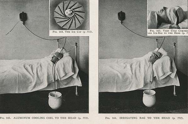 Dr Kellog's Most Absurd Medical Contraptions