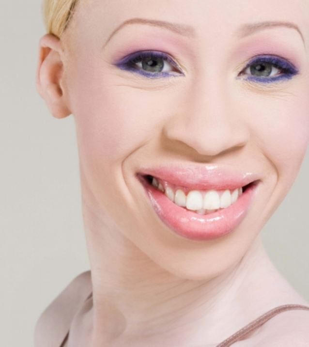 South African Albino Model Makes It To The Top Of The Industry!