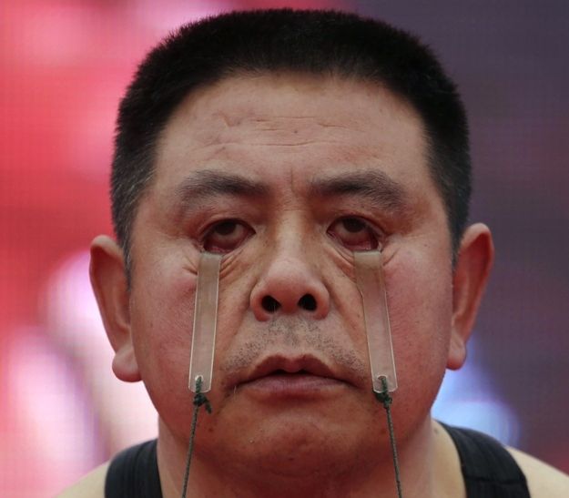 Eyelid Weightlifting?! China Is On It!