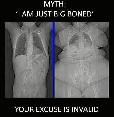 The Good Ol' 'Big Boned' Excuse от Cassandra за 30 jan 2013