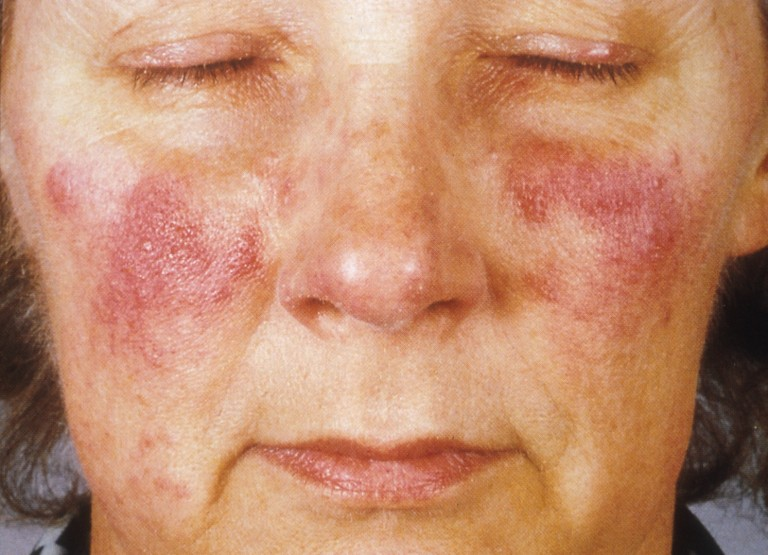 If you're dealing with rosacea as is, alcohol brings it out even more.