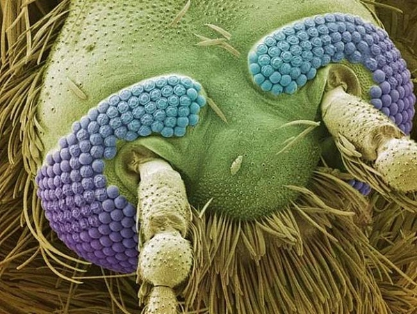 Things You Never Want To See Under A Microscope