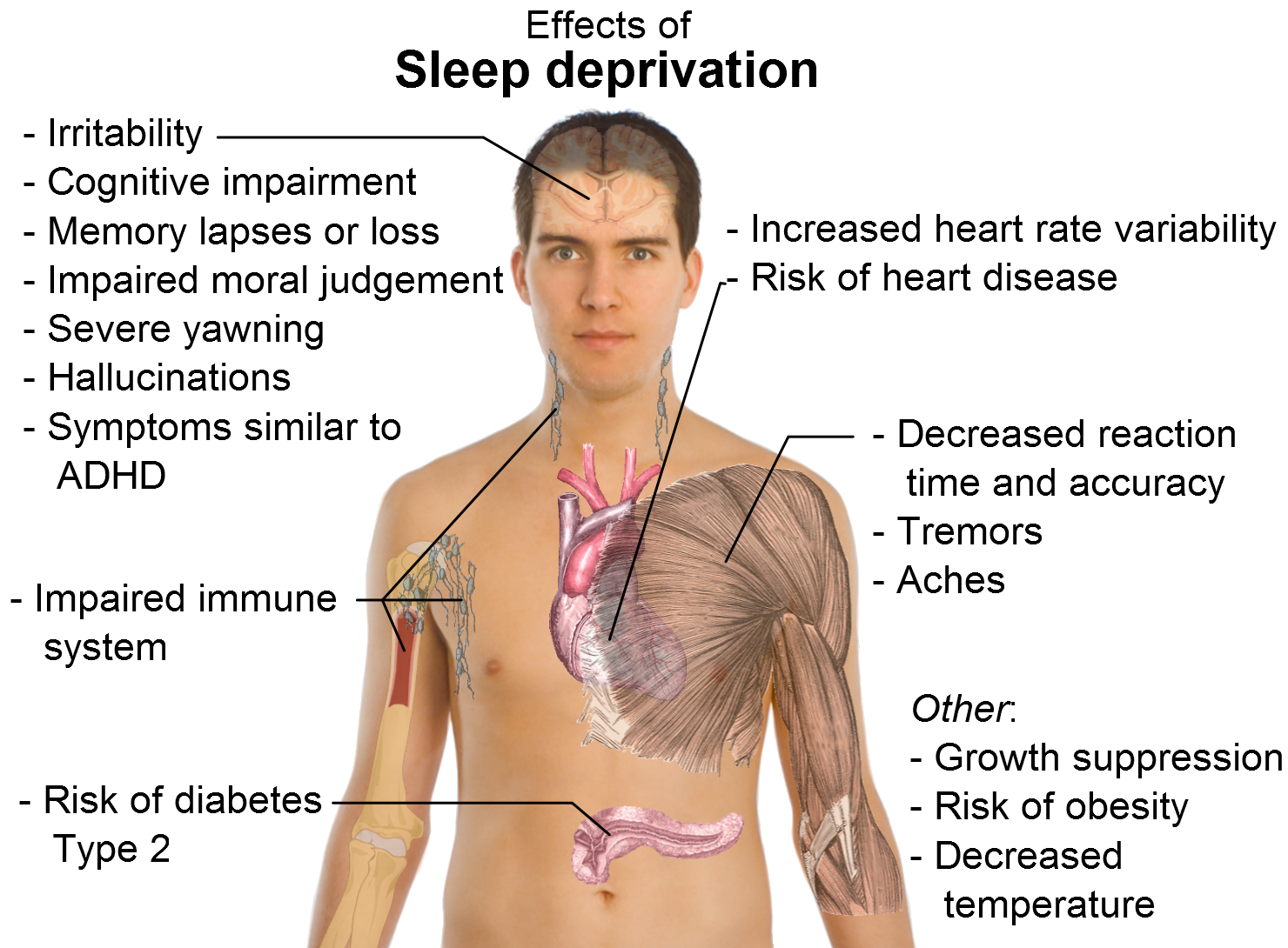 New Research Uncovers The Real Damage Of Sleep Deprivation.