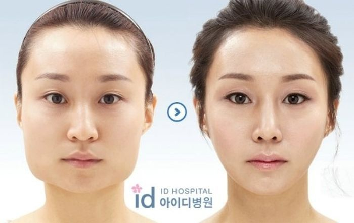 Before and After Plastic Surgery