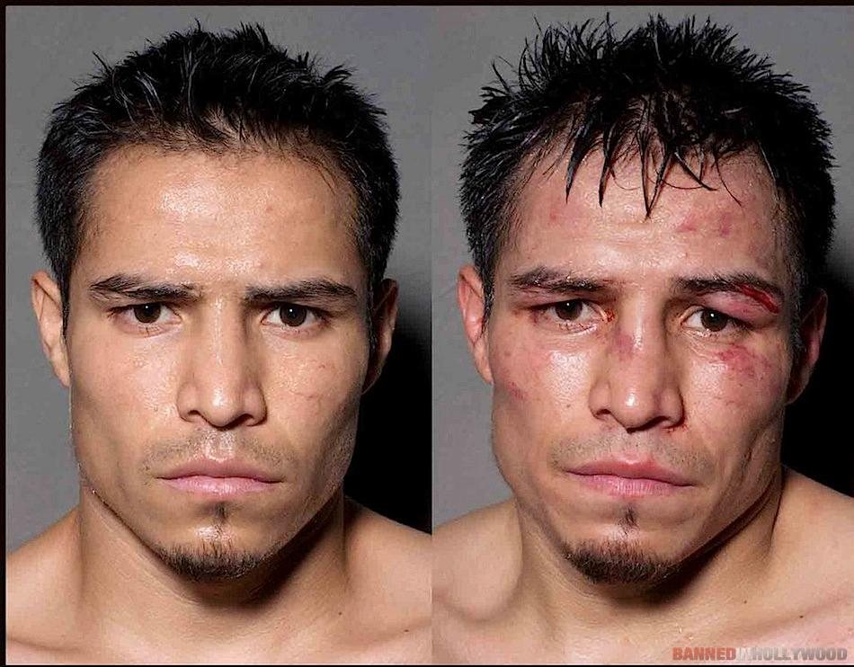 Boxers Before and After Fight