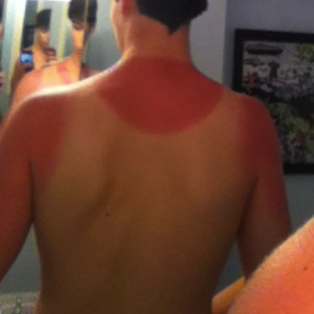 11 Painful Sunburns We Never Want to Experience